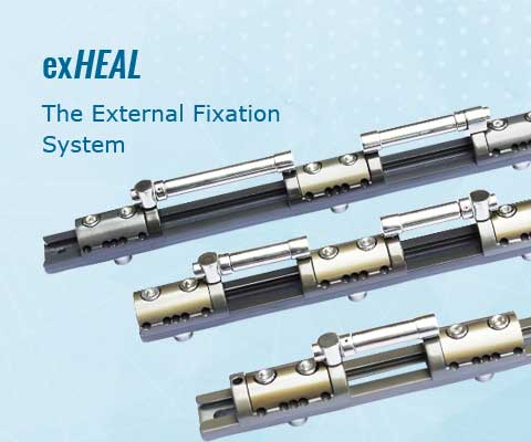 exHEAL - The External Fixation System